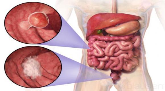 Obat Kanker Usus Besar Ganoderma Plus