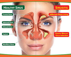 Obat Herbal Sinusitis Jelly Gamat Gold-G